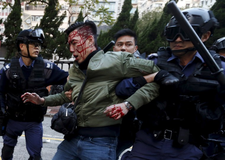 Image: An unidentified injured man is escorted by riot police at Mongkok in Hong Kong