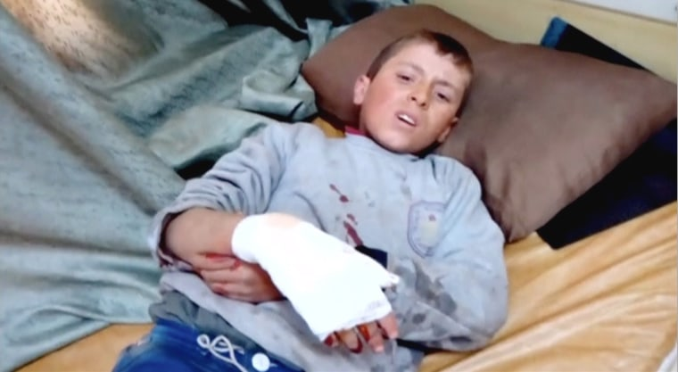 Image: Still image taken from video shows a boy lying on a bed with an injured hand after what is said to be a missile attack on a hospital in Azaz