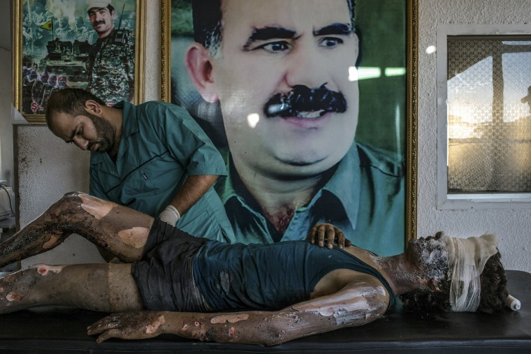 Image: General News, 1st prize singles - Mauricio Lima - IS Fighter Treated at Kurdish Hospital