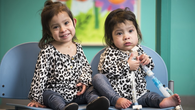 Formerly conjoined twins Knatalye Hope and Adeline Faith Mata visiting Texas Children's a few weeks before the one year anniversary of their historic separation surgery.