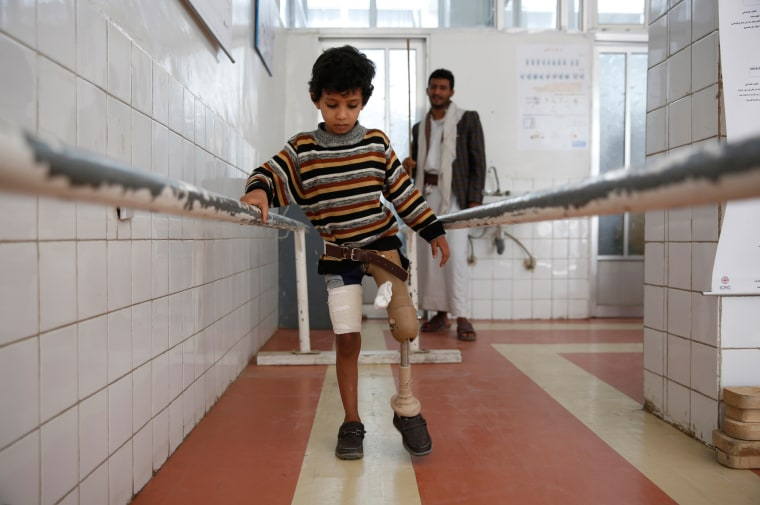 Image: A young boy who lost his leg in the Yemen war uses a prosthetic limb