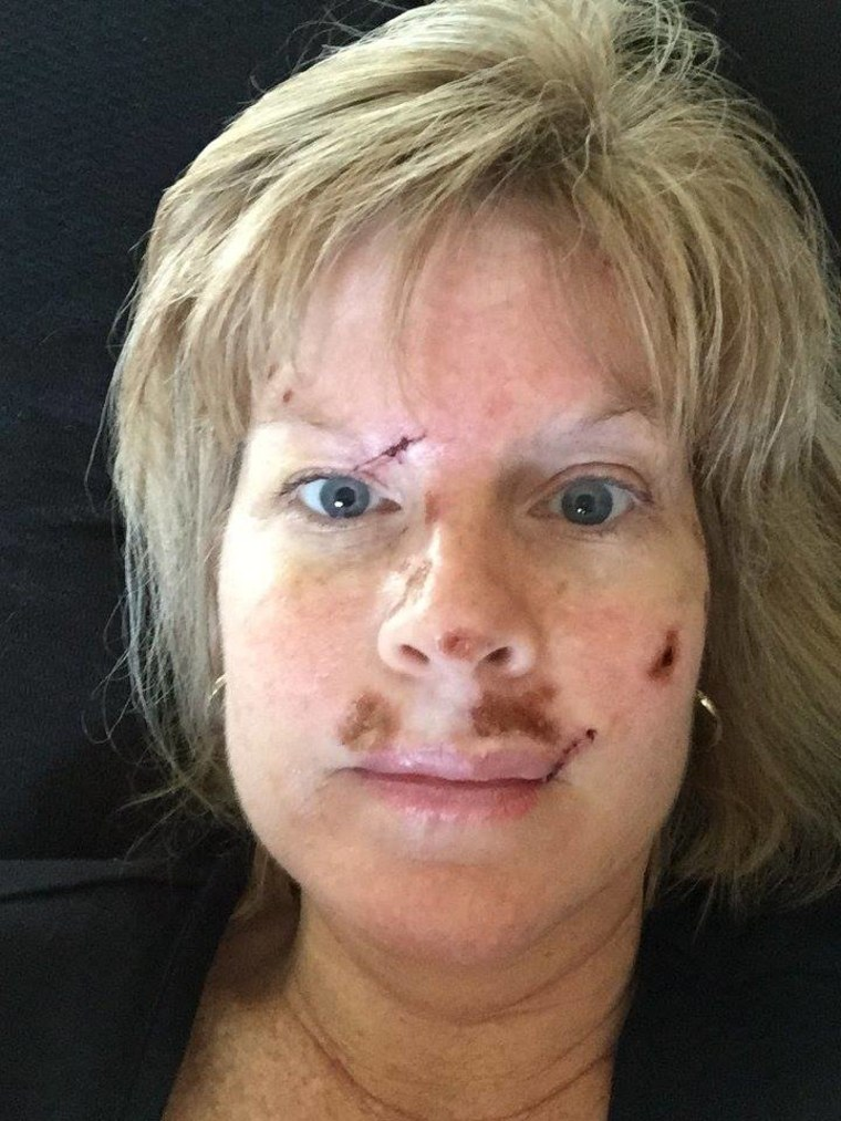 Judy Cloud has been documenting her skin cancer ordeal on Facebook.