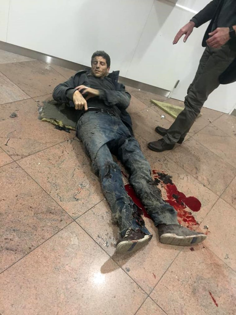 Image: A man is wounded at the Brussels Airport in Brussels
