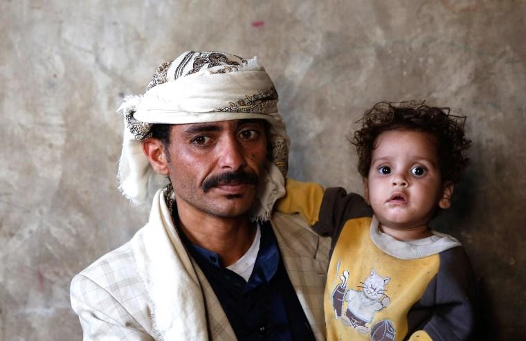 Image: Faisal Ahmed - Yemen War Hunger