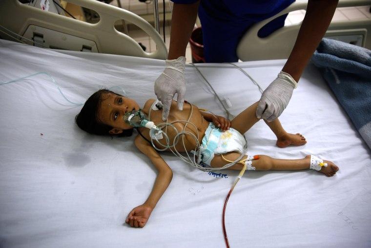 Image: Yemen War Hunger