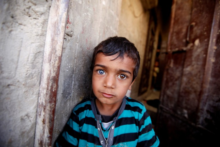 Image: A boy with differently colored eyes looks on as he waits at the door of his family's house during a house-to-house anti-polio vaccination campaign in Yemen's capital Sanaa