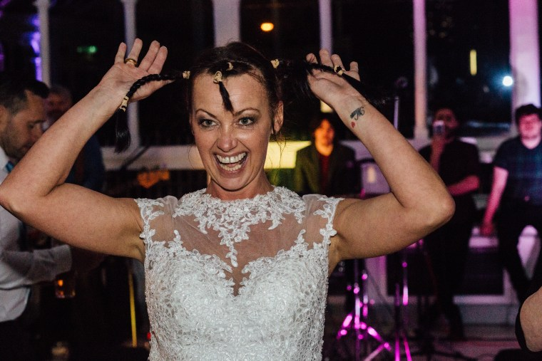 Joan Lyons shaved her head at her wedding as a tribute to her husband