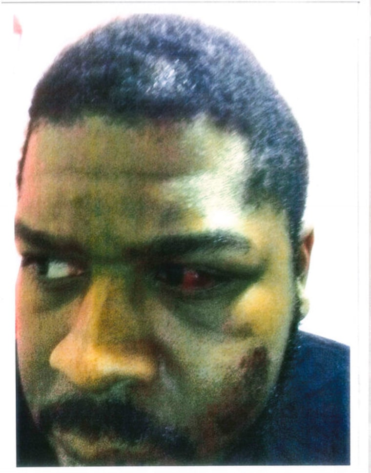 A photo showing Baker's injuries provided to NBC News by Baker's attorney.