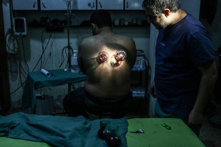 Image: Cupping theraphy in Douma field hospital