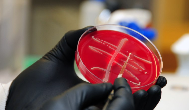 A team at the Walter Reed Army Institute of Research found a strain of E coli bacteria in a Pennsylvania woman that carries a dreaded superbug gene called mcr-1