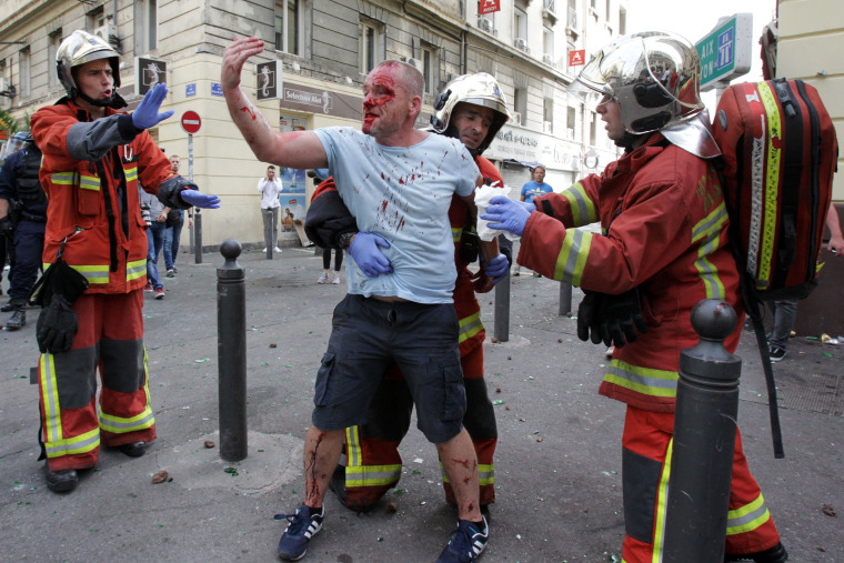 Image: An English supporter injured after a street brawl is helped by a rescue squad