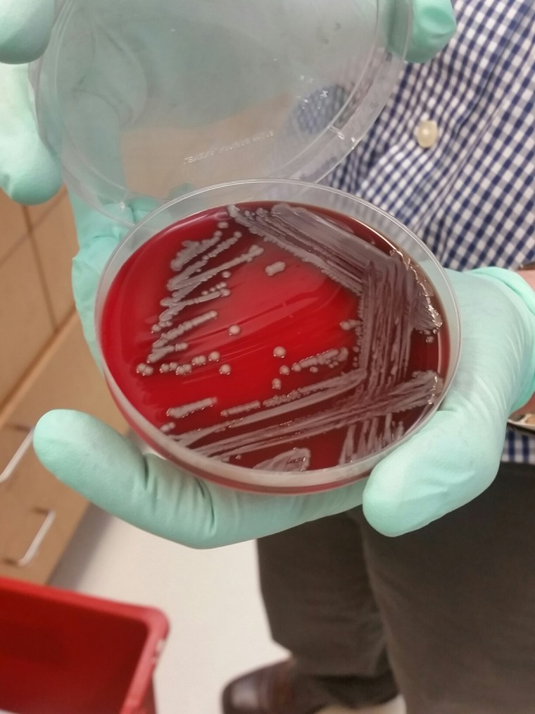 "A lab dish carrying a sample of bacteria carrying the mcr-1 ""superbug"" gene, found at Walter Reed Army Institute for Research earlier this year. Another lab just found another one, dating back to 2015."