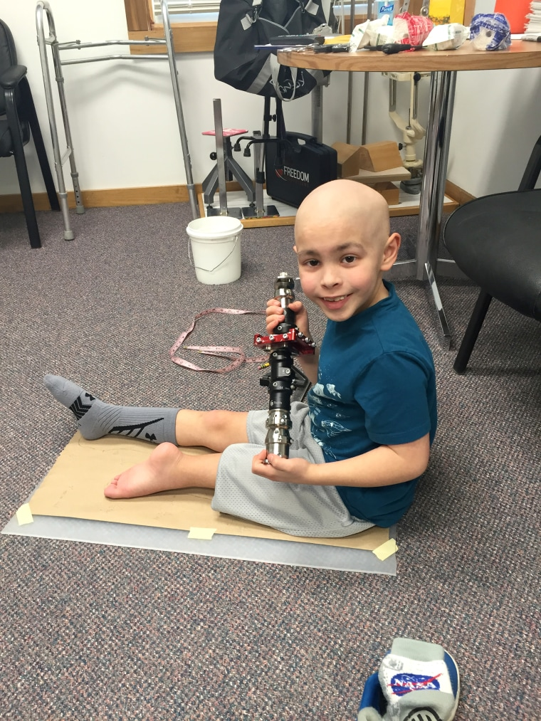 Carter had his leg partially amputated due to cancer