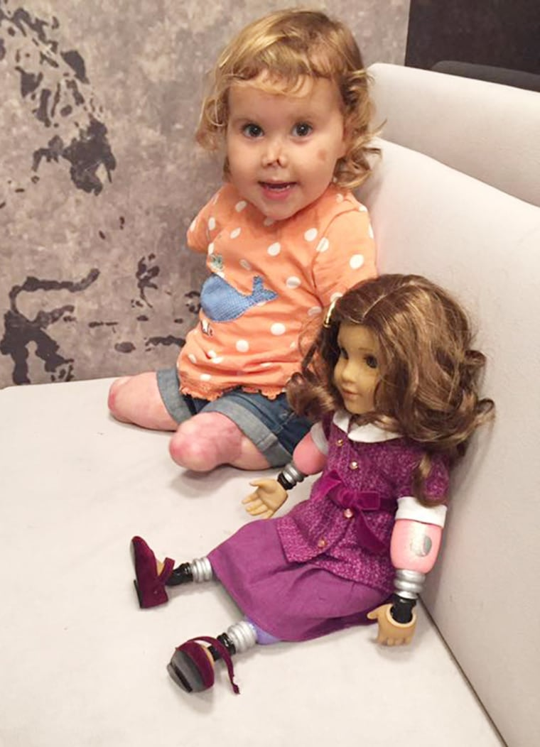 Quadruple-amputee toddler receives look-alike doll.