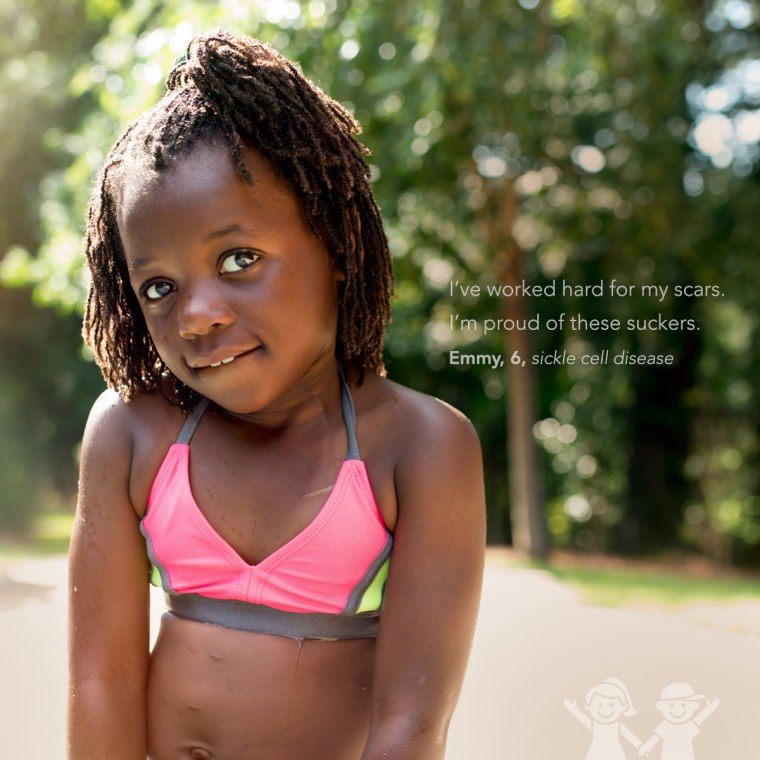 kids show off their scars in photo series