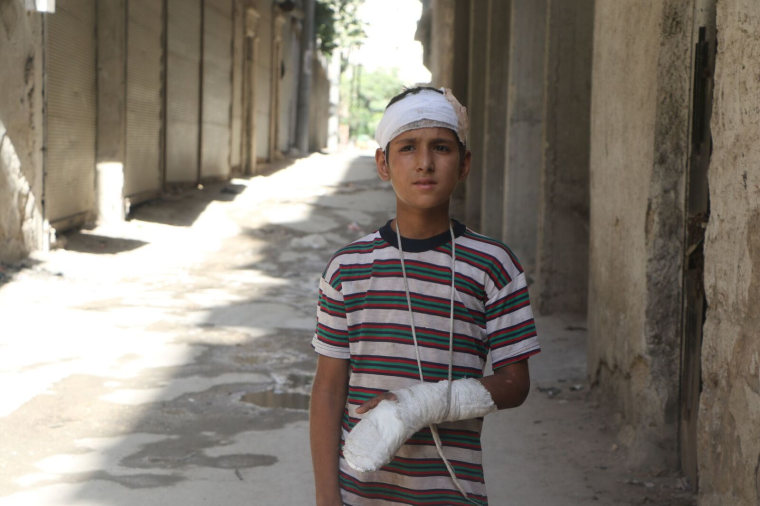Image: Yahya al-Araj, 11, was injured when an airstrike destroyed his family's apartment in Aleppo.