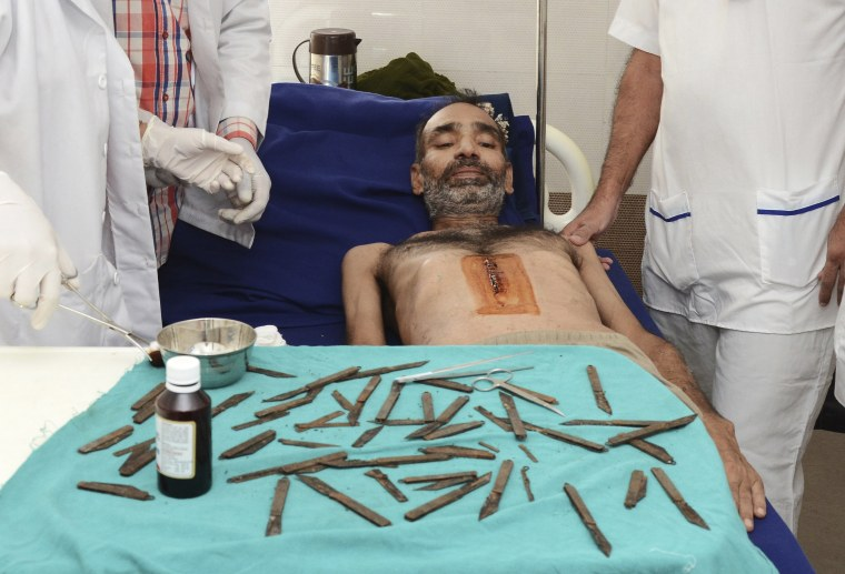 Image: Surgeons removed 28 knives, but further investigation revealed there were a dozen more.