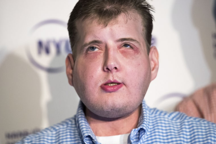 Image: Extensive Face Transplant Patient Discusses Recovery In New York