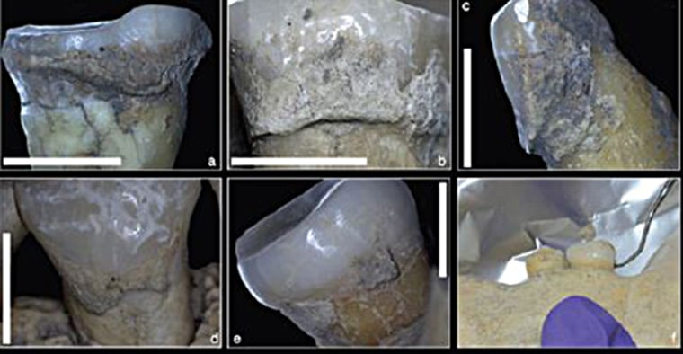 A study of plaque on the teeth of skeletons found in modern-day Serbia shows evidence of processed grains, as well as peas or beans, the team reports.