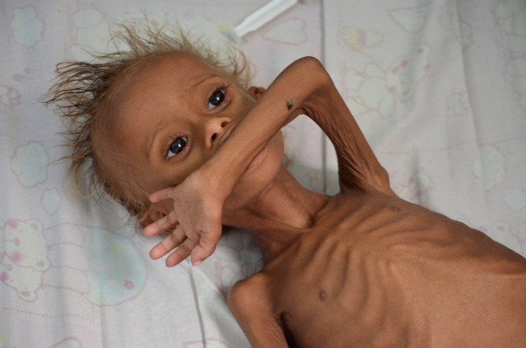 Image: Malnourished boy lies on a bed at a hospital in the Red Sea port city of Houdieda