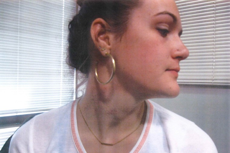 Apparent bruise marks on Delaney Robinson's neck.