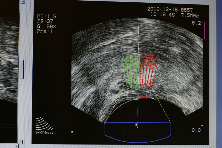 Cancer Of Prostate Ultrasound