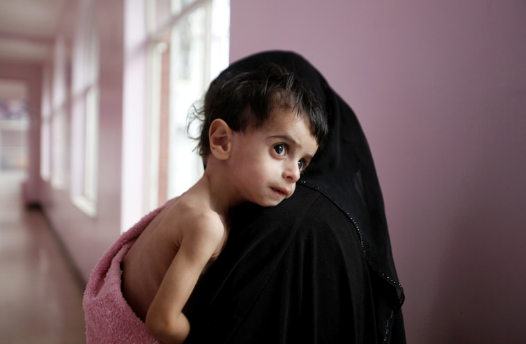 Image: Risk of famine looms in Yemen