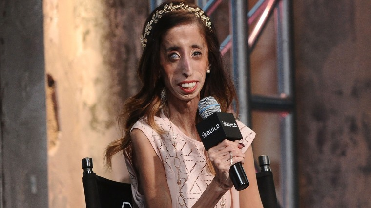 Lizzie Velasquez On Beating Back Bullies After Being Called Worlds Ugliest Woman-9569