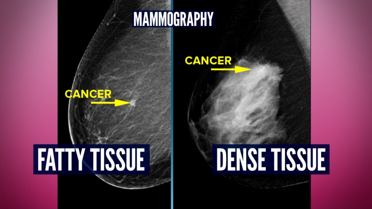 Mammography showing breast cancer