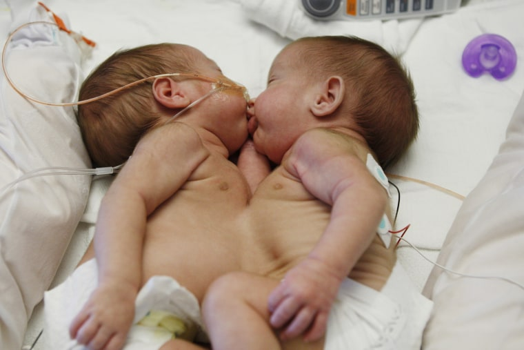 conjoined twins Selah and Shylah Oglesby