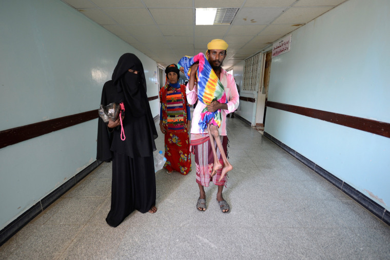 Image: A Picture and Its Story: Yemen's face of malnutrition