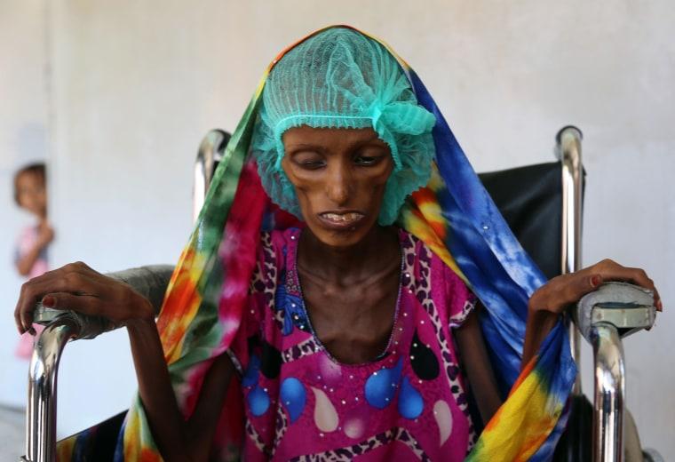Image: YEMEN-CONFLICT-AID-MALNUTRITION