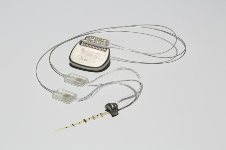 The brain-spine interface uses a brain implant like this one to detect spiking activity in the brain's motor cortex.