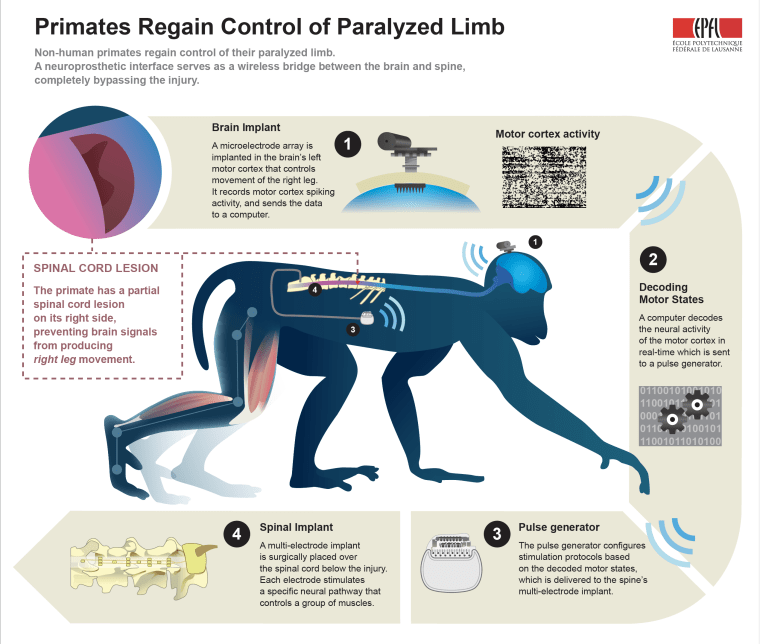 A neural interface helped a monkey walk again after its spinal cord was cut