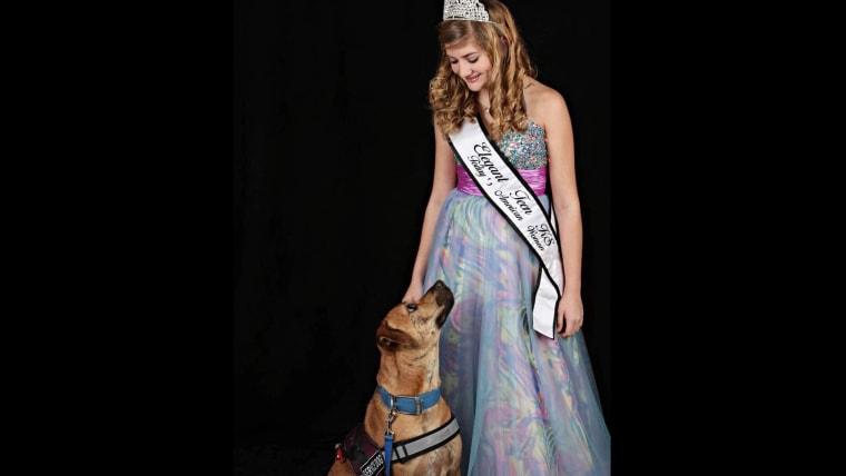 Epilepsy Pageant Queen Teen