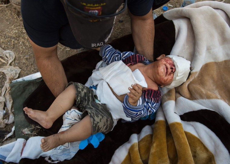 Image:  Iraqi 18-month old Jassem is comforted by an army medic while being treated for shrapnel head injuries