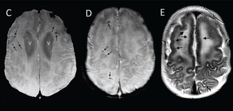 Assessment of a Series of 13 Infants with Congenital Zika Virus Infection without Microcephaly at Birth.