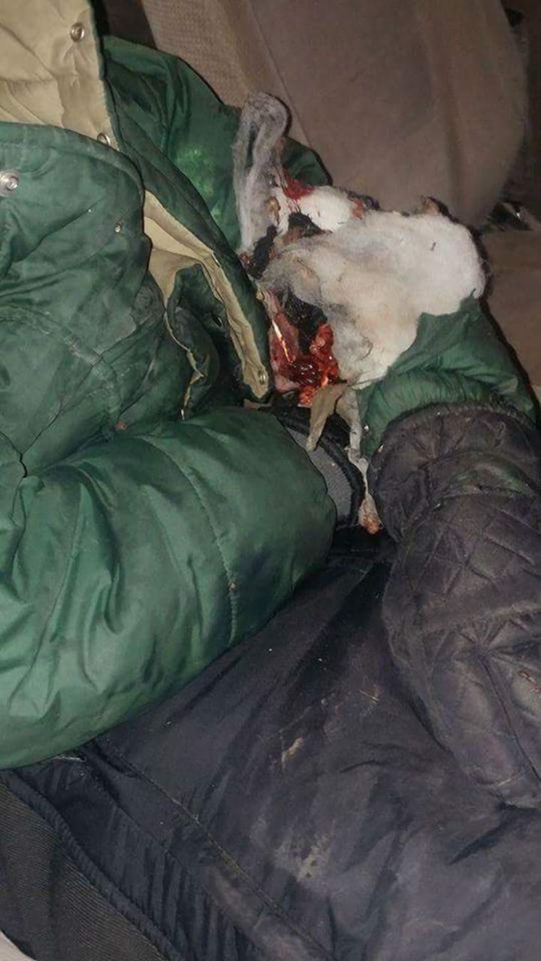 Sophia Wilansky, 21, is undergoing surgery at the Hennepin County Medical Center in Minneapolis today, after she was hit with a concussion grenade in clashes with police near the Dakota Access Pipeline construction site, according to her father. This provided photo was the least graphic of those sent to NBC News depicting her injury.
