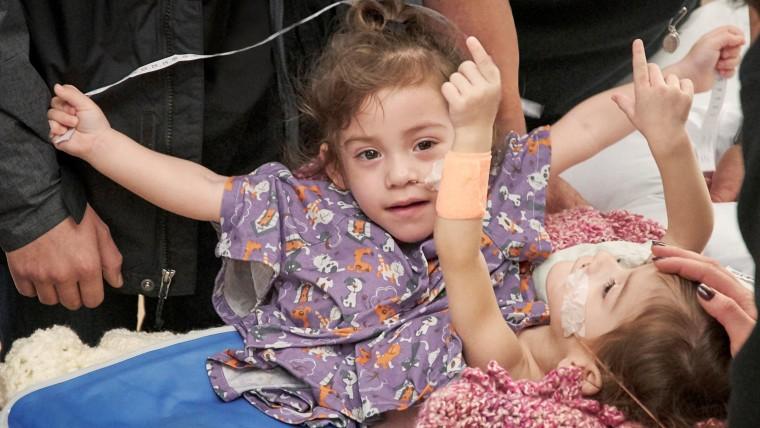 Handout photo of Erika and Eva Sandoval before their separation surgery in Palo Alto, California