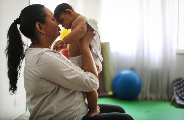 Image: Brazilian baby with microcephaly