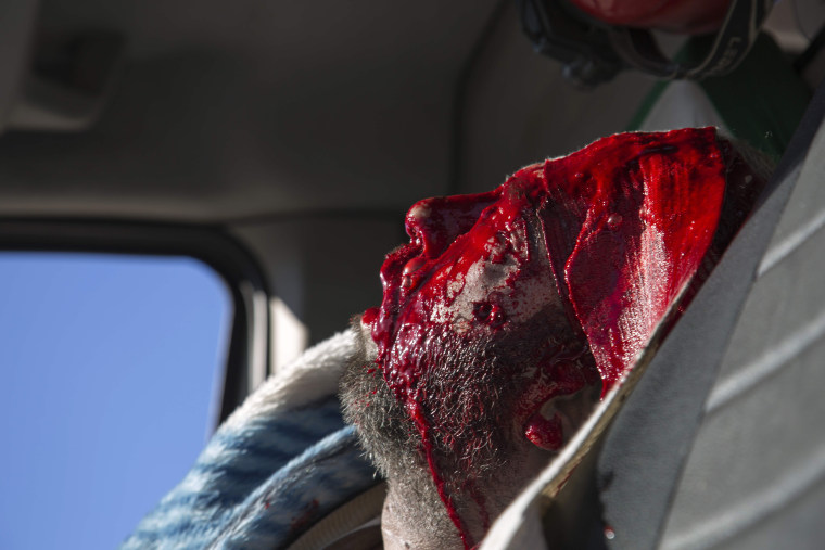Image: An injured man sits inside an ambulance as Syrian rebels and their families gather at the rebel-held al-Amiriyah neighborhood, while waiting to be evacuated to the government-controlled area of Ramouss, a on the southern outskirts of the city.