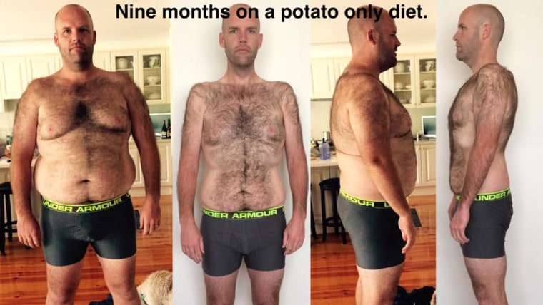 Andrew Taylor, who ate only potatoes for a year