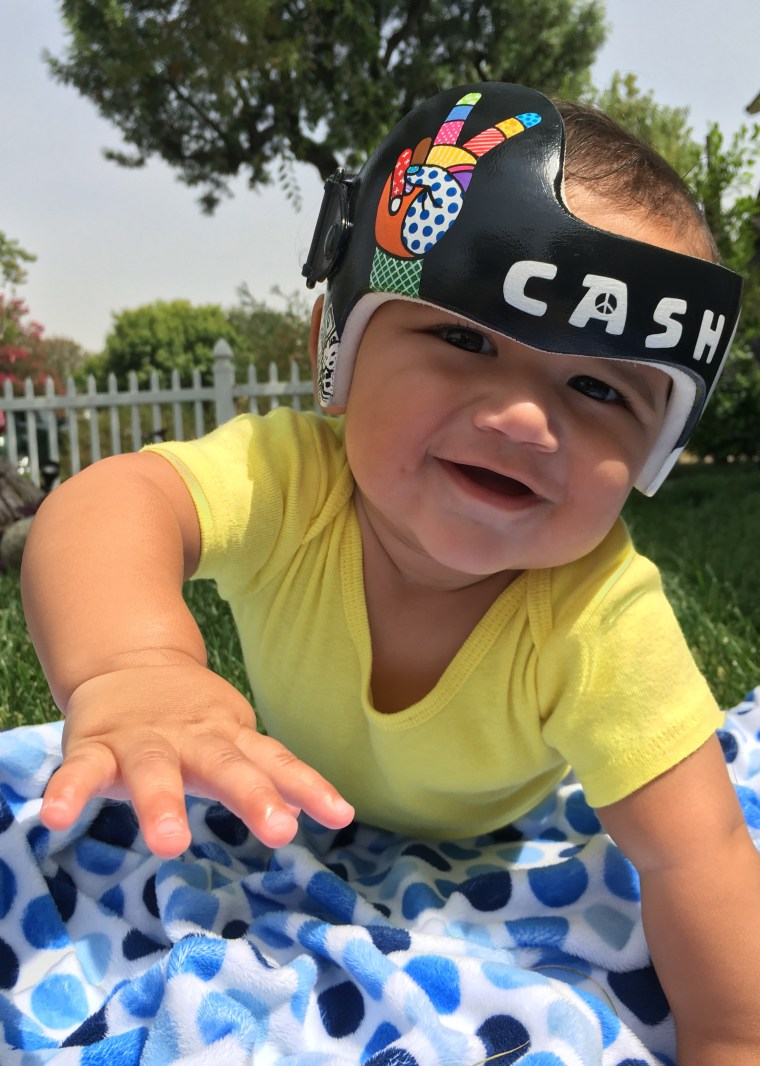 """Lauren Katunich's husband, David, is a music producer. So when their son, Cash, needed a corrective helmet, the California couple requested that Strawn create a music-inspired headpiece for their baby. """"Paula's designs have made a world of difference in what would otherwise have been a very depressing time,"""" said Katunich."""