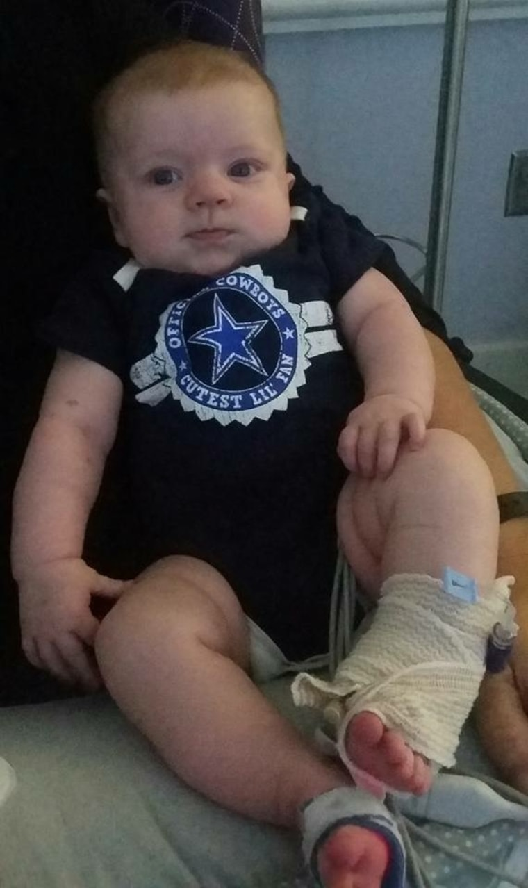 Girl with heart defect wearing Dallas Cowboys onesie