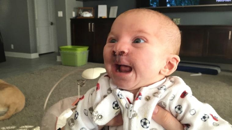 Even four days after lip repair surgery, 3-month-old Brody was all smiles.