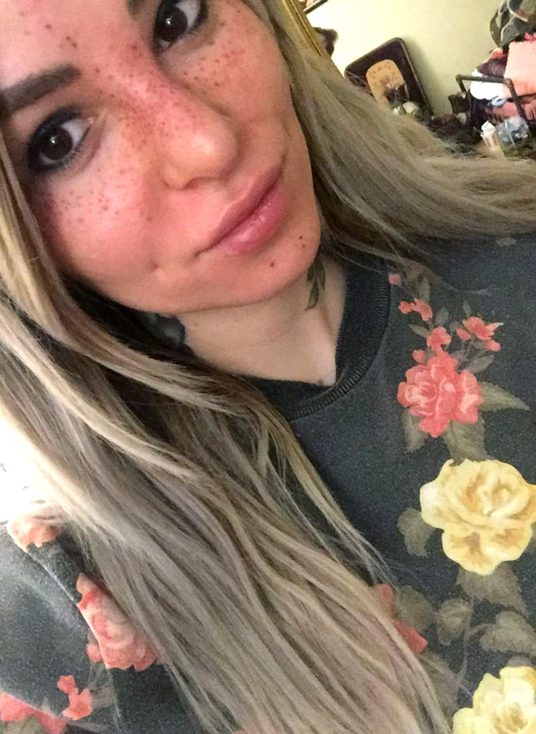 Tattoo artist Sydney Dyer shows off her newly applied freckle tattoos.