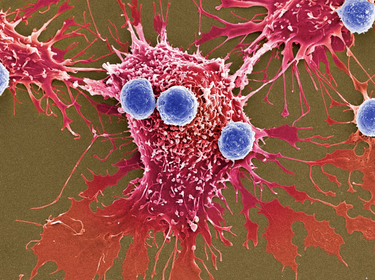 T lymphocytes and cancer cells, SEM