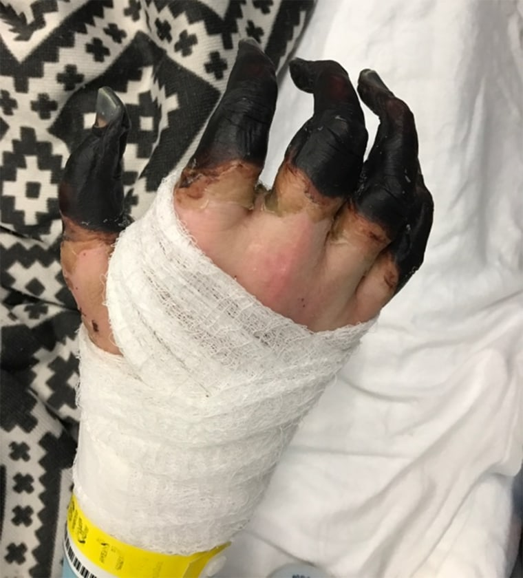 Breen's hands turned black as a result of his infection and may have to be amputated.
