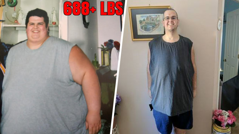 After losing 374 pounds, Sal Paradiso has about 80 pounds of excess skin that needs to be removed.