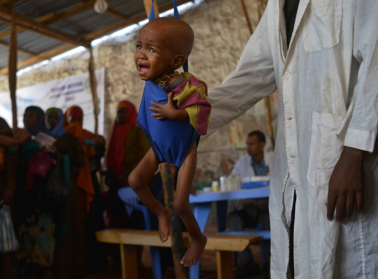 Image: A malnourished child is processed by an aid worker for a UNICEF- funded health programme catering to children displaced by drought, at a facility in Baidoa town